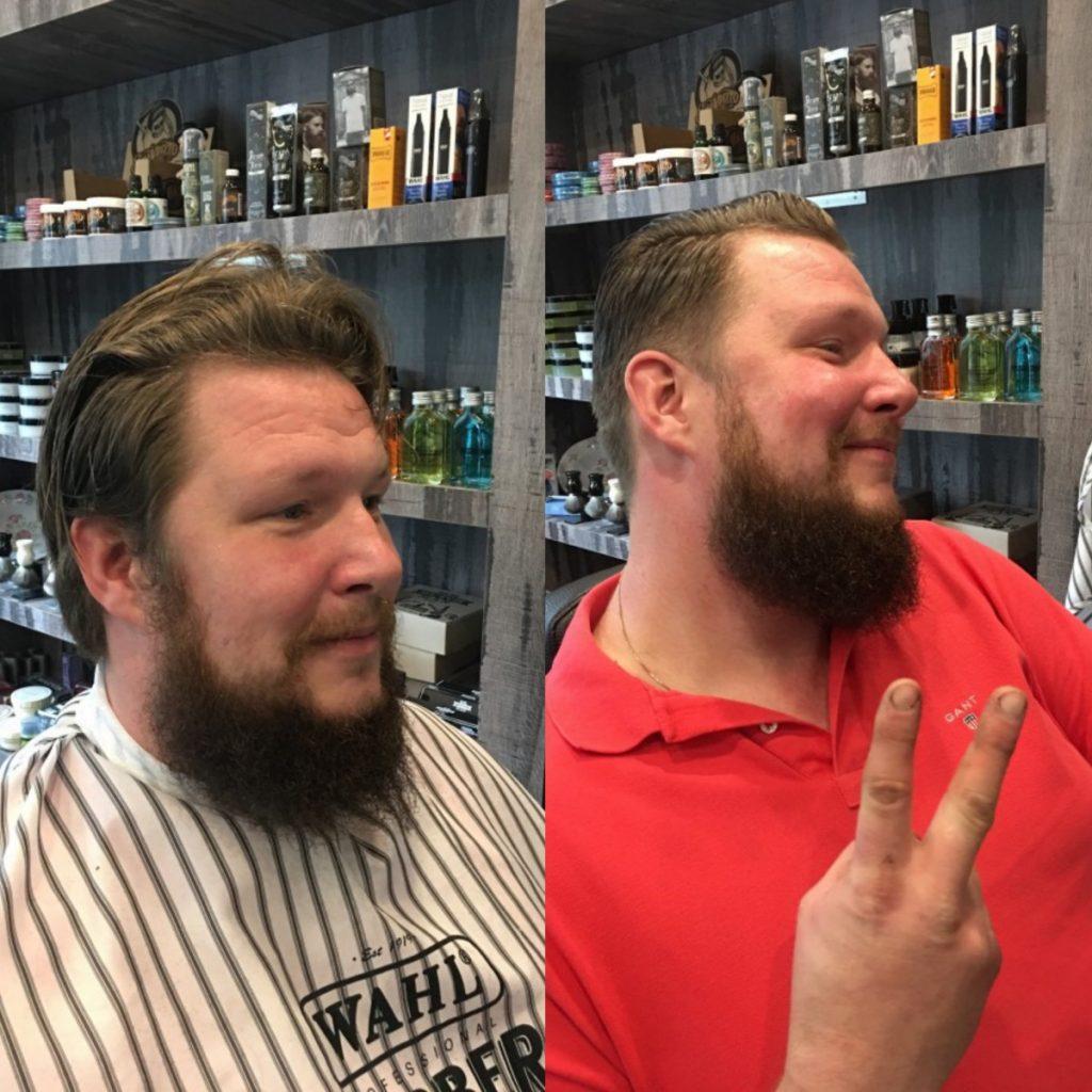 sneller laten groeien baard