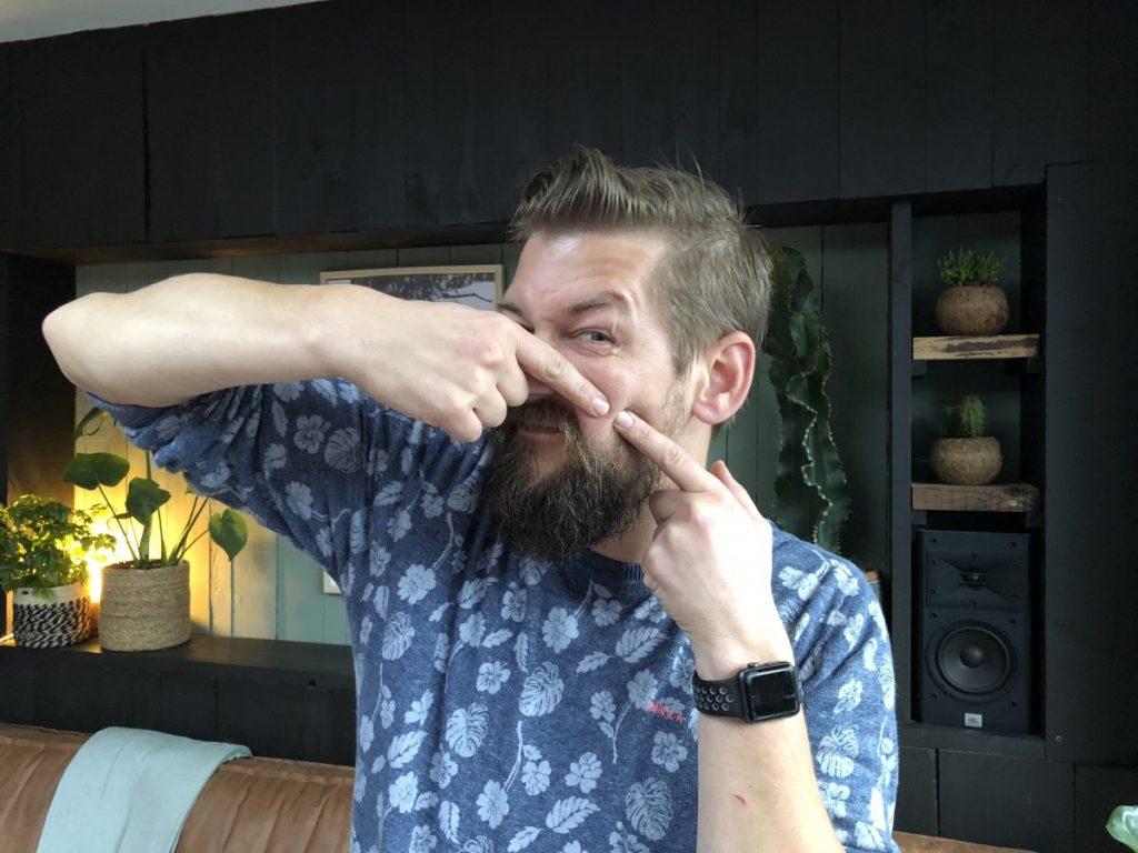 tips tegen acne en puistjes